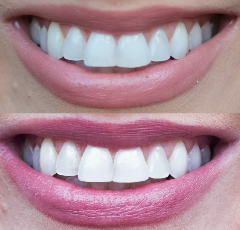 Easy Custom Teeth Whitening for Busy Professionals